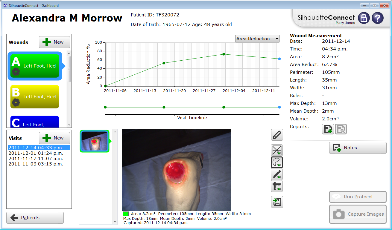 wound healing and technology assessment volume This review of the current state of the art in wound-healing products plastic surgery international volume new wound understanding and technology have.