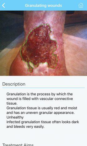 wcb-granulation-wounds